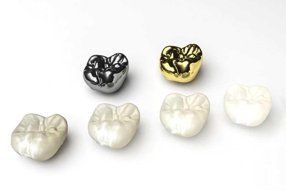 روکش دندان سرامیکی فلزی