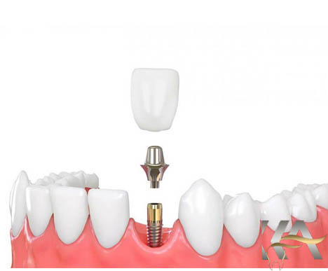 وکش دندان سرامیکی چه_کاربردهایی دارد؟
