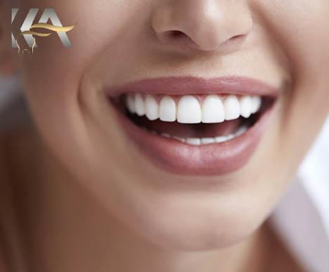مراقبت از روکش دندان سرامیکی