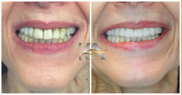 مزیت های روکش دندان سرامیکی