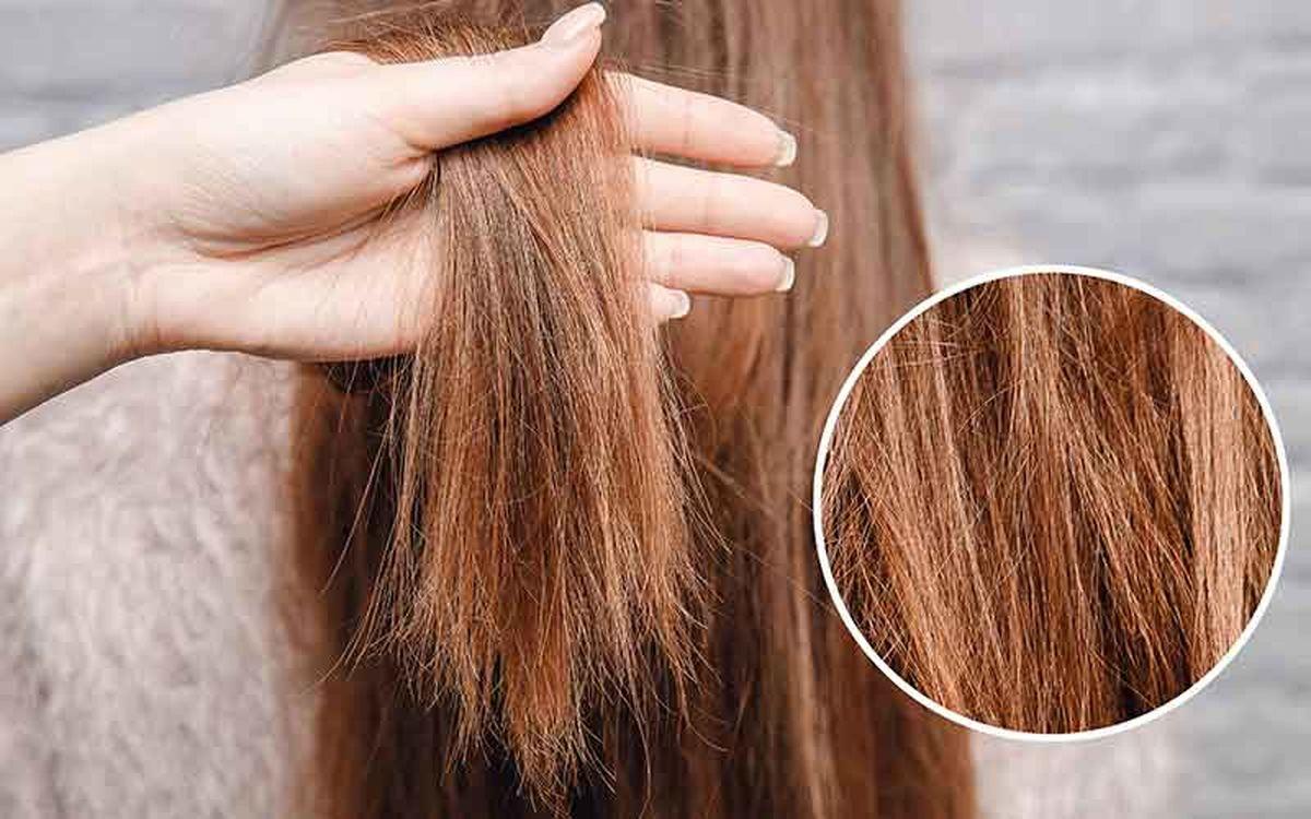 خشکی موی سر
