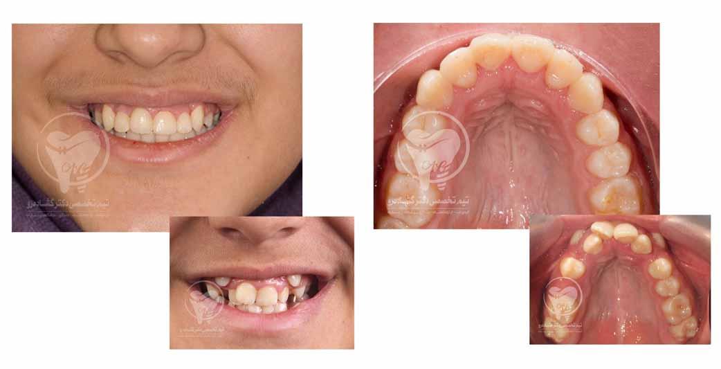 نمونه کار ارتودنسی دندان نهفته